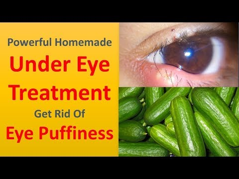 Powerful Homemade Under Eye Treatment   Get Rid Of Eye Puffiness