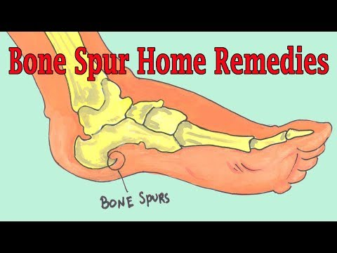 Effective Home Remedies To Get Rid Of Bone Spur | Bone Spur Treatment