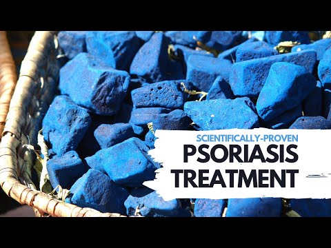 Natural Psoriasis Treatment - Studies Show This Herb Is Effective Home Remedy