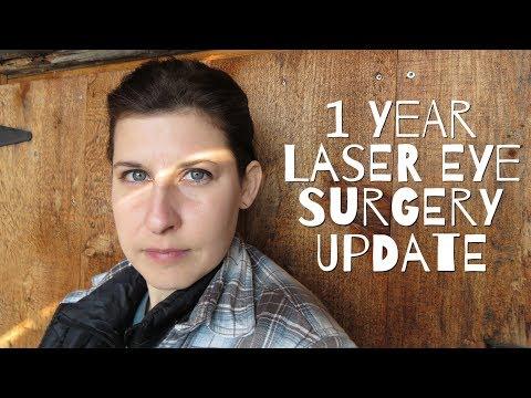 1 Year Laser Eye Surgery Update