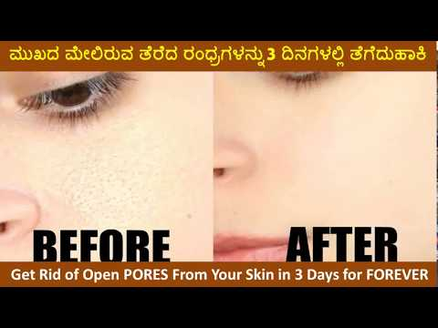How to Get Rid of Open PORES in 3 Days for FOREVER