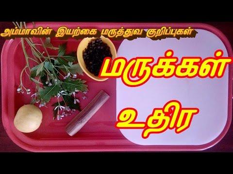 மருக்கள் உதிர எளிய வீட்டு குறிப்புகள்  || Homely tips to Remove wart in Tamil