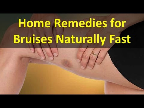How to Make a Bruise Go Away Fast - Home Remedies for Bruises