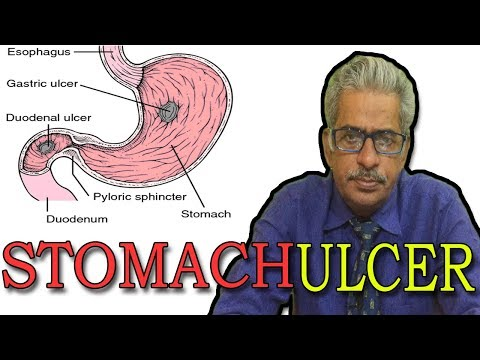 Stomach Ulcers in Hindi - Discussion and Treatment in Homeopathy by Dr P.S. Tiwari