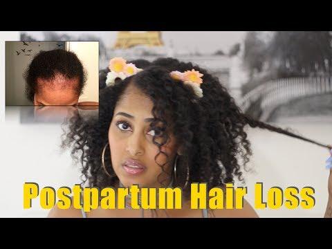 POSTPARTUM HAIR LOSS | NATURAL HAIR UPDATE @iamchinarenee