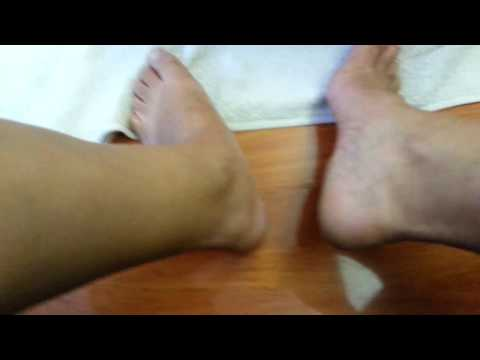 Listerine Foot Soak Part III