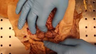 Opening of the Cranium