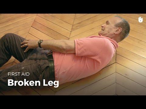 First Aid: Broken Leg   First Aid