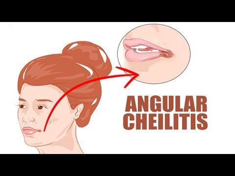 Angular Cheilitis Home Remedy   How to Get Rid of Angular Cheilitis
