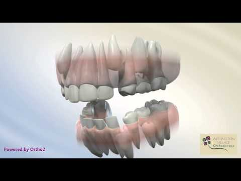 Serial Extraction - Wellington Village Orthodontics