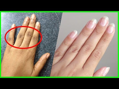 Home Remedies To Lighten Dark Fingers - Knuckles Whitening