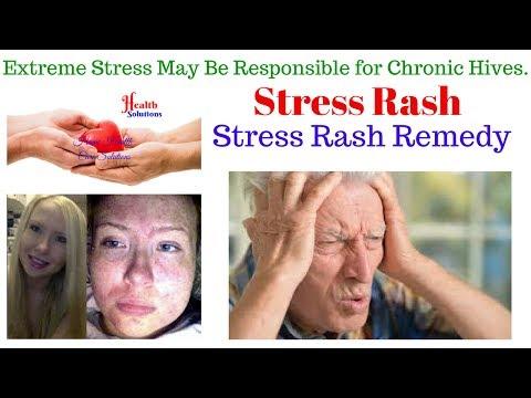 Stress Rash - Stress Rash Remedy - Extreme Stress May Be Responsible for Chronic Hives.