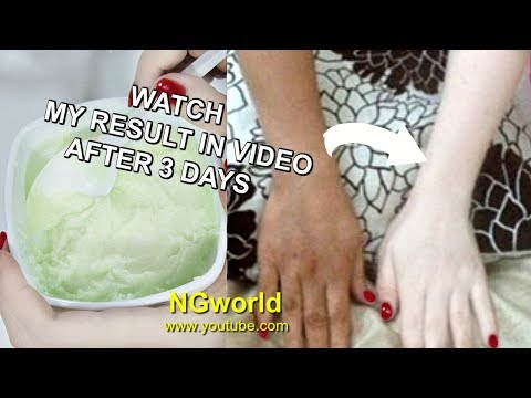 SKIN WHITENING 3 SHADES Permanently, get MILKY, Fair, Spotless, Glowing Skin NATURALLY ll NGworld