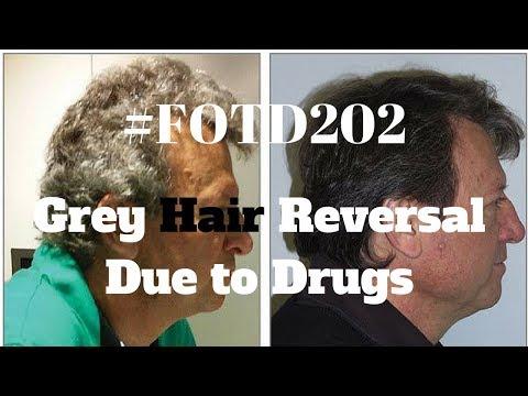#FOTD202 Grey Hair Reversal due to Drugs