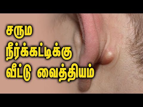 Home Remedies for Sebaceous Cysts - Tamil Health Tips