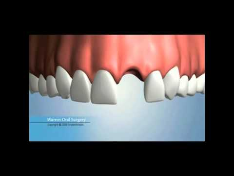 Single Missing Tooth Replacement Options