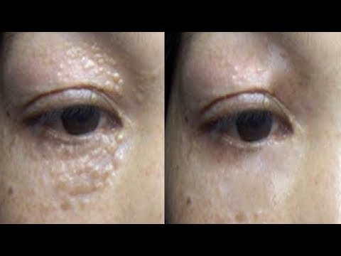 Milia Treatment - 3 Weeks To Remove Milia and White Bumps Under Eyes By Home Remedies
