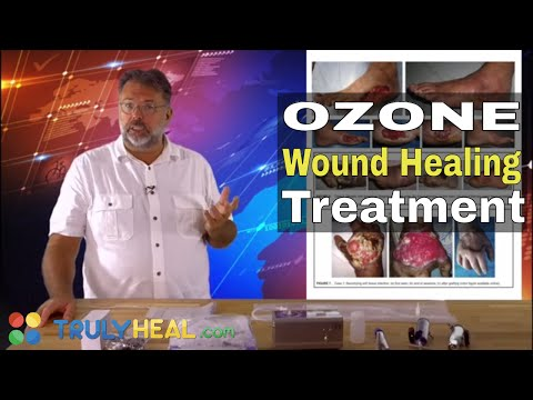 Ozone Therapy For Wound Healing Part 4   Wound Healing Process