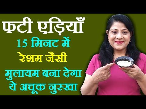 Cracked Heels Tips in Hindi - फटी एड़ियों की देखभाल कैसे करें | Cracked Heels Remedies by Sonia Goyal