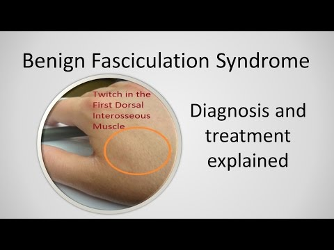 Benign Fasciculation Syndrome Causes and Treatment