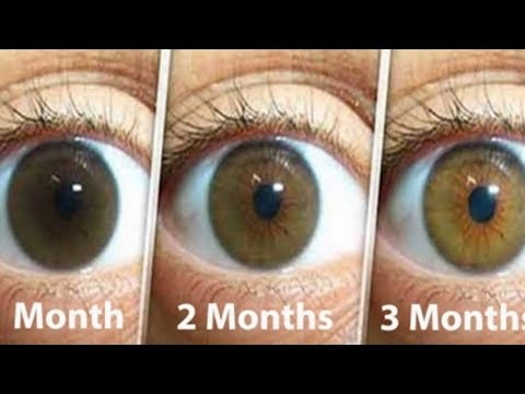 A Natural Remedy That Will Clean The Eyes Treat Cataracts And Improve Your Eyesight In Only 3 Month
