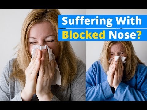 How to get rid of the blocked nose in 3 seconds