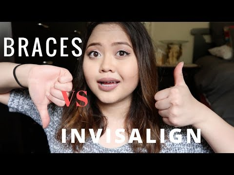 BRACES VS INVISALIGN | Which Should YOU Get?