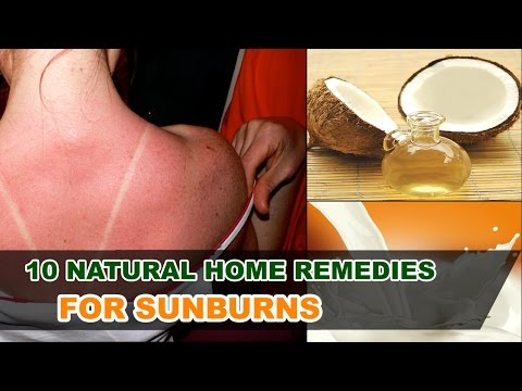 Top 10 Natural Home remedies for SunBurn | Relief for sunburn blisters