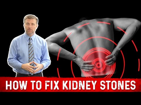How to Relieve Kidney Stone Pain