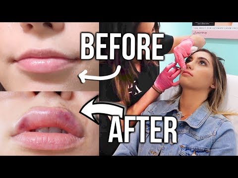 LIP INJECTION EXPERIENCE! (Live footage!!)