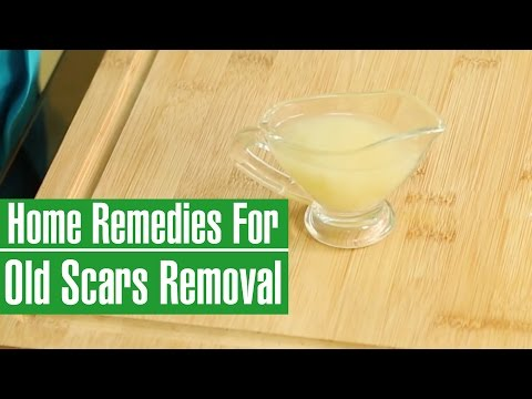 HOW TO REMOVE OLD SCARS FROM LEGS & FACE -  Natural Scar Removal