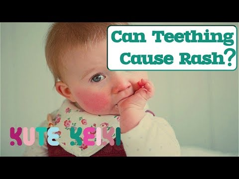 Can Teething Cause Rash in Babies? - Natural Teething Rash Remedies