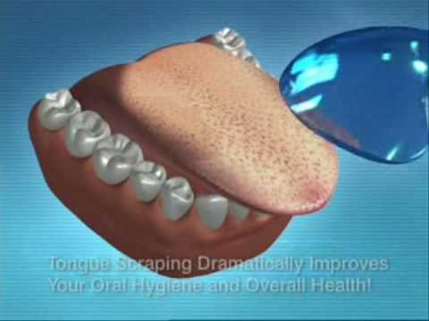 OraSweet Tongue Cleaner