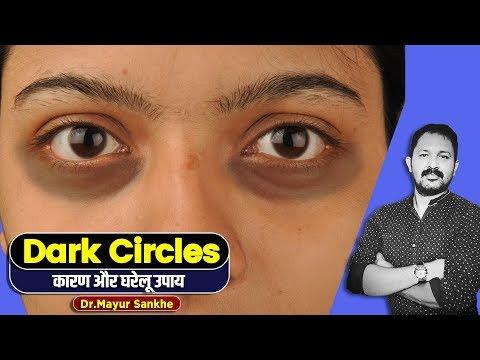 How To Remove Under Eye Dark Circles Naturally | Simple Tricks And Tips | Dr. Mayur Sankhe | Hindi