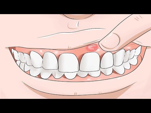 Effective Home Remedies for Gum Swelling