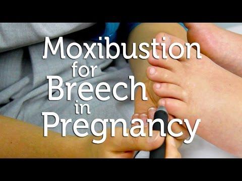 Moxibustion for Breech in Pregnancy