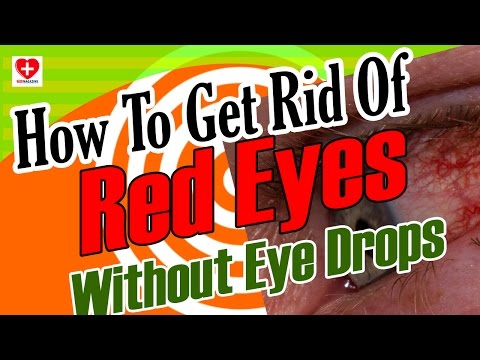 How To Get Rid Of Red Eyes Without Eye Drops: How To Clear Red Eyes Naturally