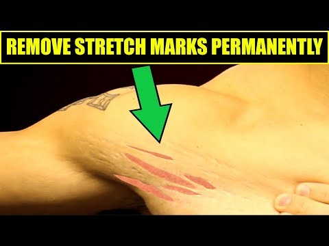 How To Get Rid Of Stretch Marks | 4 Easy Tips To REMOVE STRETCH MARKS