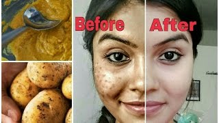 Remove Dark Spots In Just 7 Days 100 Natural Get Rid Of Uneven Skinto