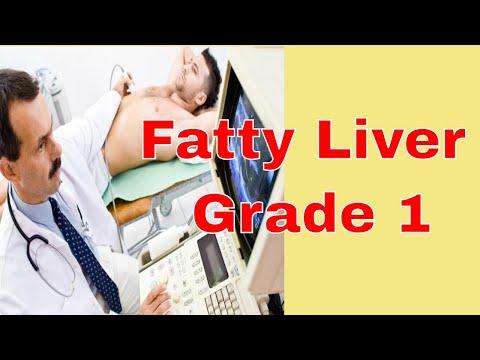 Fatty Liver Grade 1