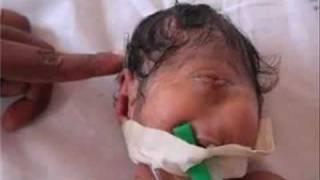 Fenomena - Kuasa Allah Bayi Dajjal Lahir Dari Israel