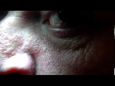Nose and eyelid Twitch Benign Fasciculation Syndrome
