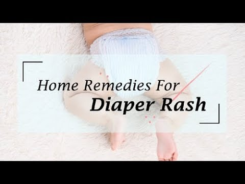 10 Effective Home Remedies For Diaper Rash | Natural Methods of Cure & Treatment