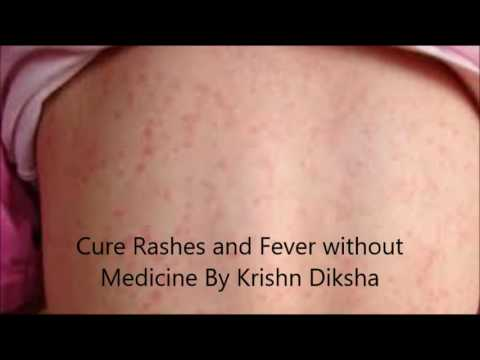Cure Rashes and Fever without Medicine By Krishn Diksha