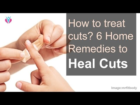 How to treat cuts? 6 Home Remedies to Heal Cuts