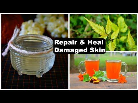 5 Remedies To REPAIR & HEAL Damaged Skin Naturally !