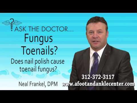 Does Nail Polish Cause Toenail Fungus? Chicago, Lincolnwood, Oak Brook, IL - Podiatrist Neal Frankel