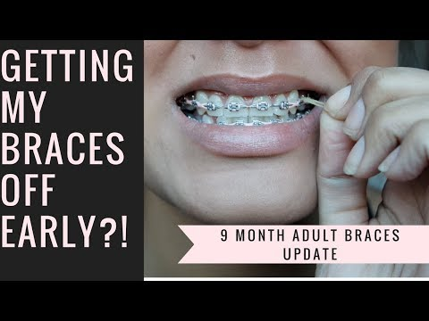 9 Month Adult Braces Update: Getting My Braces Off Early?!