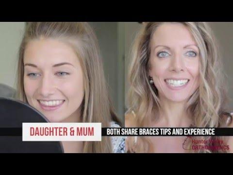 Mum Julie gets her ceramic braces off, same week as daughter Chloe   Part 3 of 3