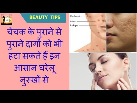 Home Remedies To Remove Chickenpox Scars Quickly | Clear Old Marks |